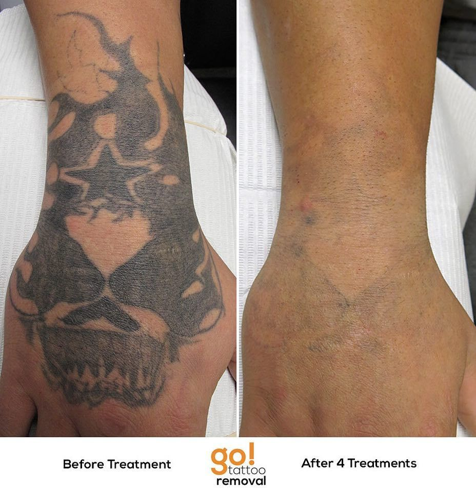 This client had heavy scarring from getting tattooed which