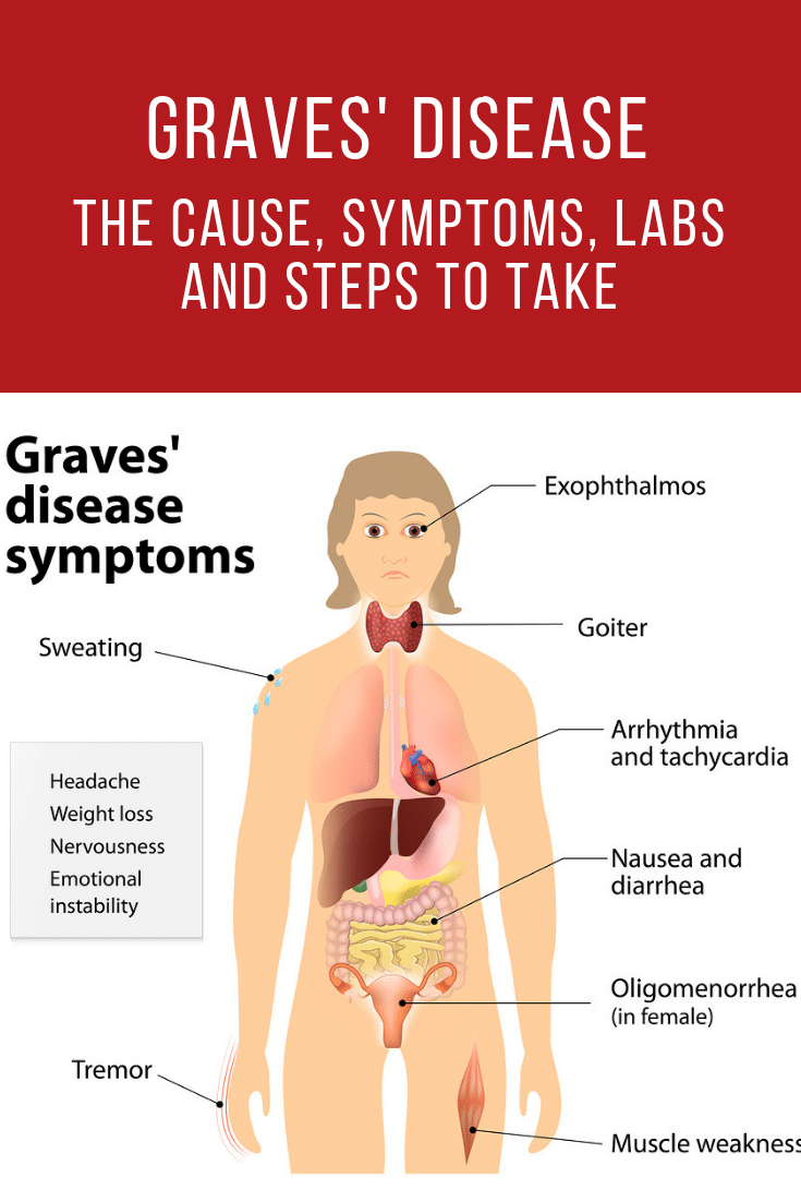 Graves Disease The Cause Symptoms Labs And First Steps To Take Celiac Disease Symptoms Graves Disease Lyme Disease Symptoms