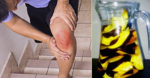 Vaikų artritas: skausminga liga, kuriai priežasčių – milijonai - Mamos Žurnalas