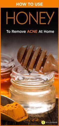 Honig Akne