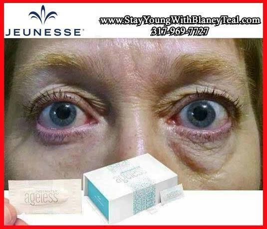 ✯ STOP WAITING FOR RESULTS ✯  Meticulously developed, our formula is lightweight and contains a skin-conditioning complex of minerals that evens skin tone. Instantly Ageless™ immediately dissolves into the skin, reducing the appearance of wrinkles. It's specifically designed to target areas which have lost elasticity—revealing visibly toned, lifted skin. Users have seen dramatic results in seconds. WATCH how it works here! http://bit.ly/1Q9sLW9