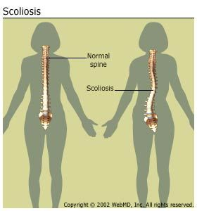 An Overview Of Scoliosis Scoliosis Scoliosis Exercises Osteoarthritis