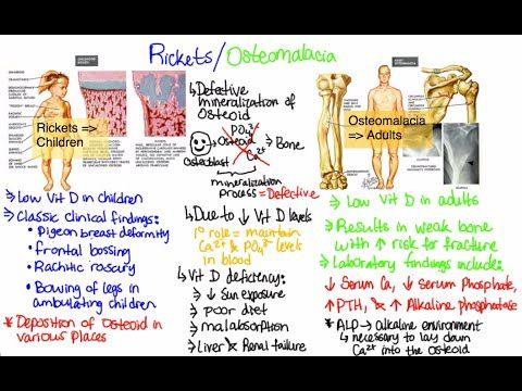 20++ Differences between osteoporosis osteomalacia and osteomyelitis info