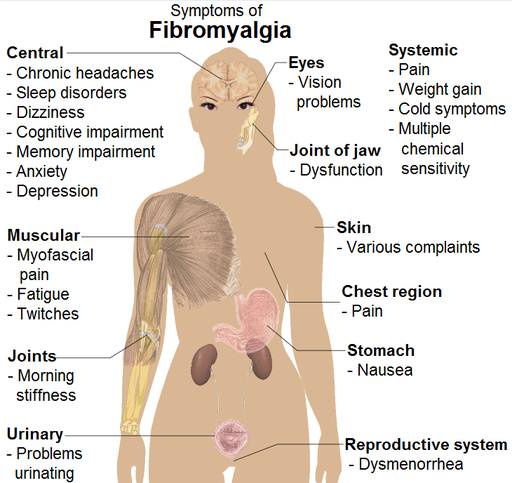 fibromyalgia symptoms | what are the signs and symptoms of, Skeleton