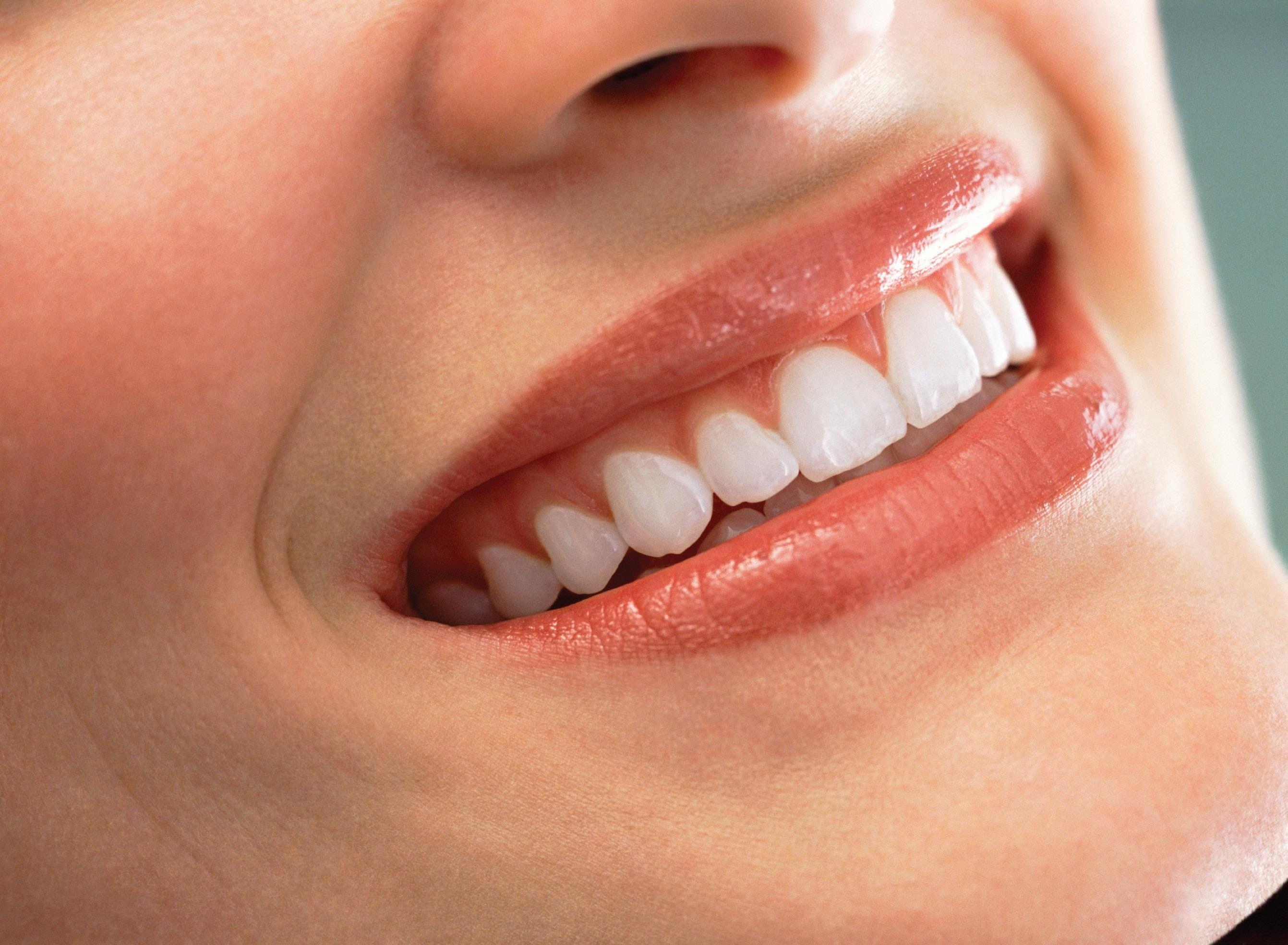 Clareamento Dental Caseiro Como Fazer Aprenda Clarear Os Dentes Com