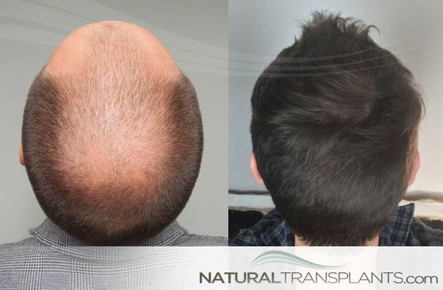 Hair Transplant Near Me Hair Transplant Before And After Hair Growth Cream Hair Restoration Hair Growth Treatment