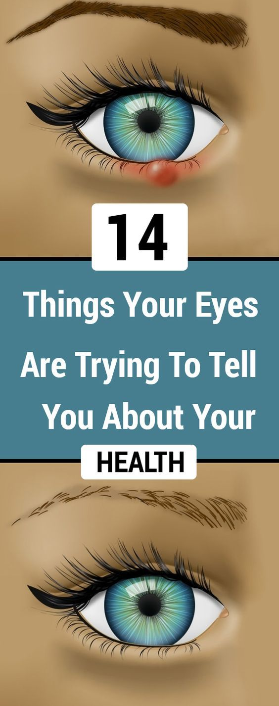 14 Things Your Eyes Are Trying To Tell You About Your Health  #lifestyle  #fitness