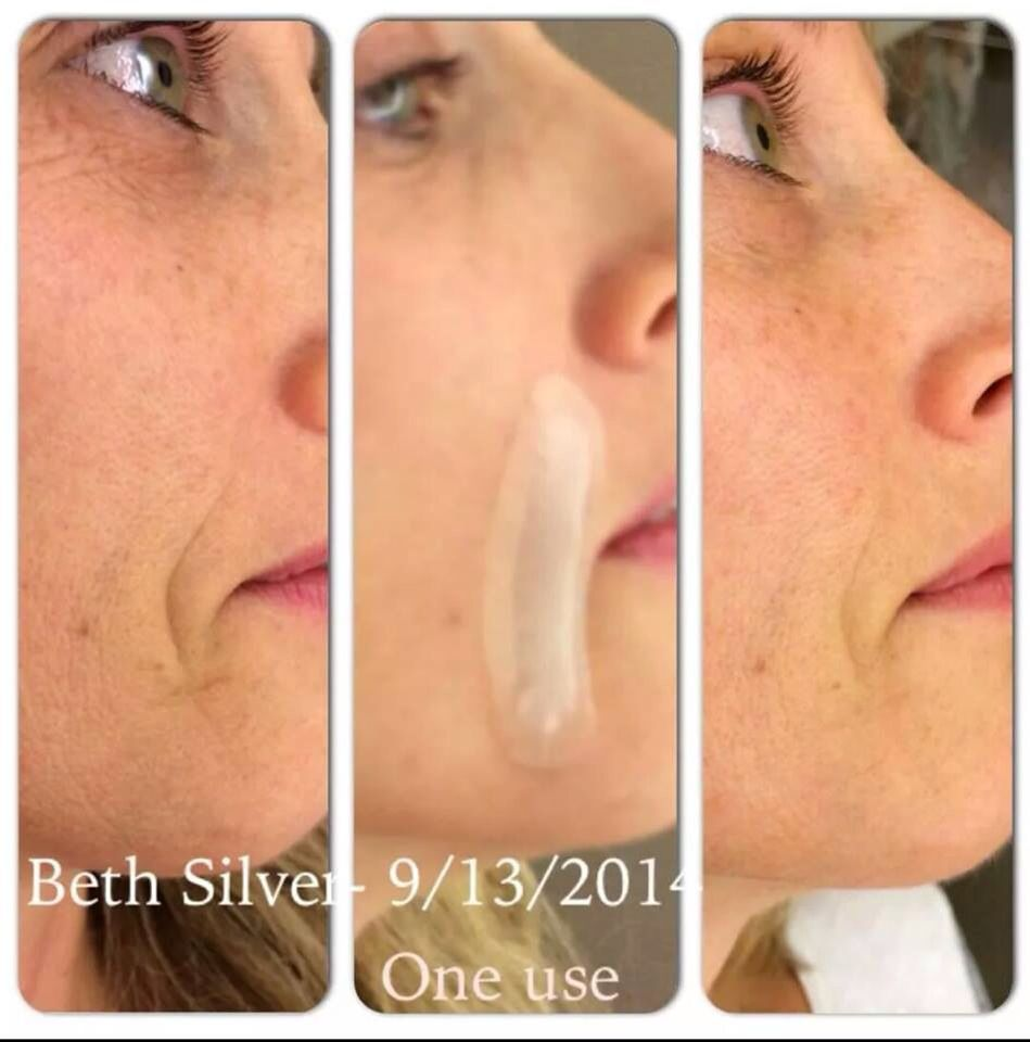 Parentheses Around The Mouth Acute Care By Rodan Fields Rodan And Fields My Rodan And Fields Rodan And Fields Redefine
