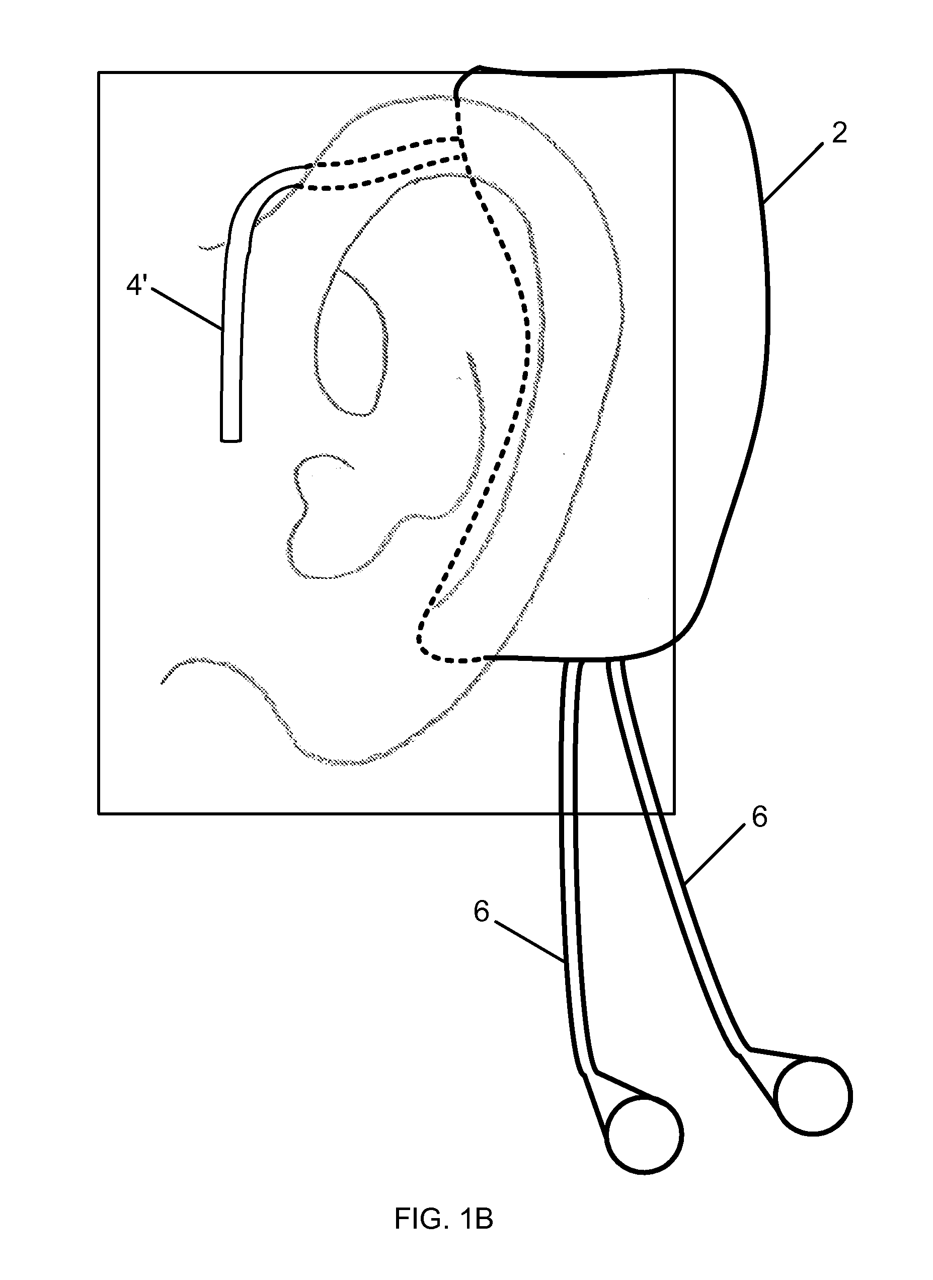 Patent drawing ecg the bcg or the ppg module