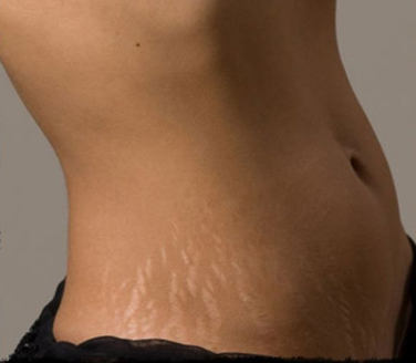 5 Easy & Natural Ways to Get Rid of Stretch Marks Permanently