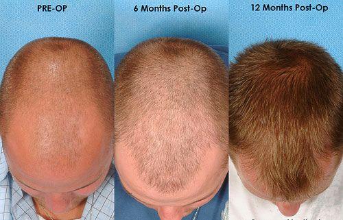 Laser Hair Reduction In Chandigarh Hair Transplant In Jalandhar