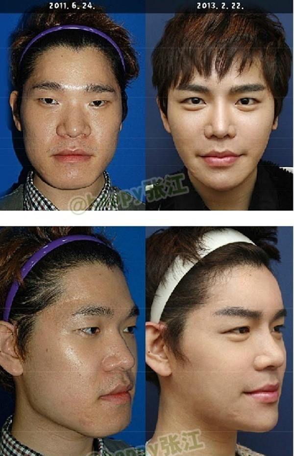 korean plastic surgery before after 1115 29 asiantown net face man