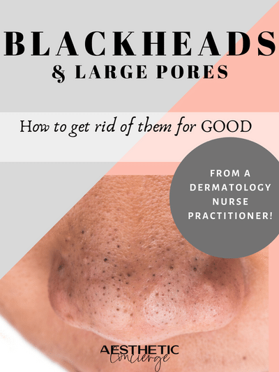 How To Get Rid Of Blackheads Large Pores It S Not A Pore Strip Or Harsh Scrub Aesthetic Concie In 2020 Large Pores Pore Strips Affordable Skin Care