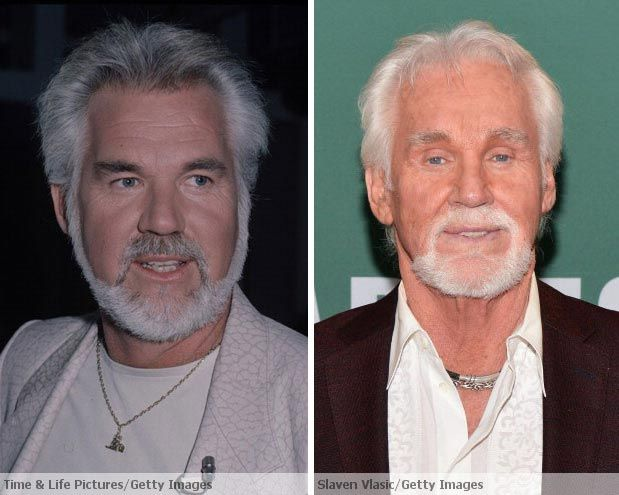 Kenny Rogers Before Amp After Plastic Surgery Cut Me