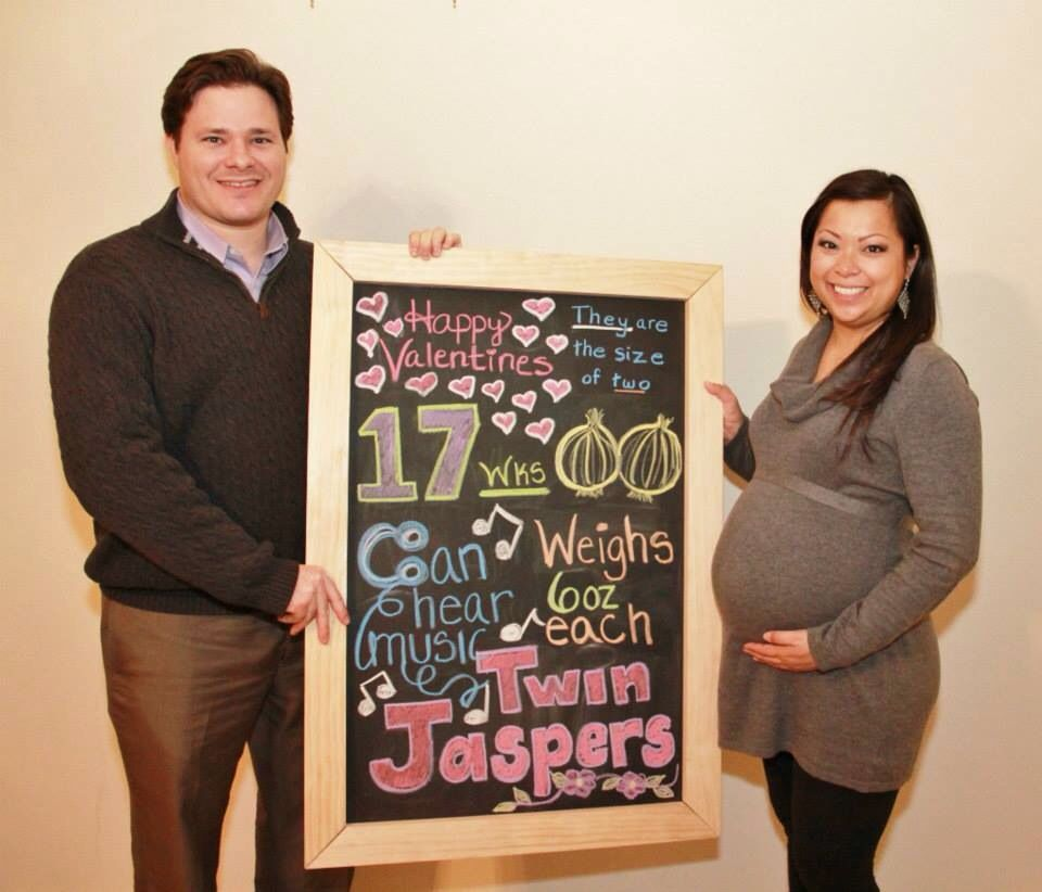 Baby Board: Belly Bump at 17 weeks pregnant with Twins. They are ...