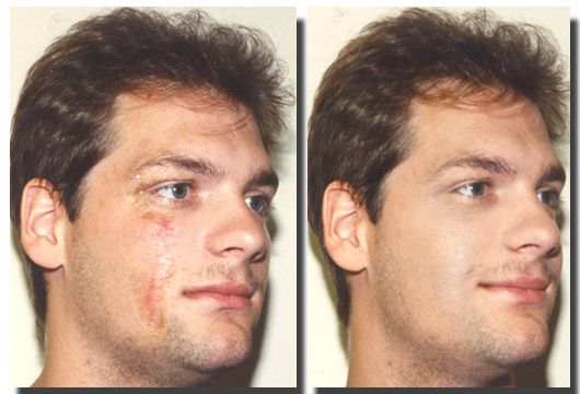 Corrective Makeup Male Vitiligo Treatment Corrective Makeup