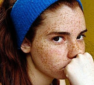 Latina red head acne