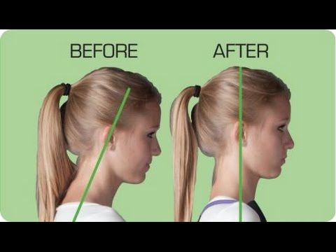 forward head posture fix pdf bonues youtube