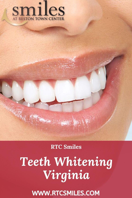 Pin On Teeth Whitening Reston Va
