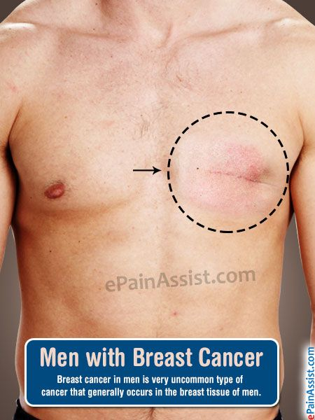 Men With Breast Cancer-4075