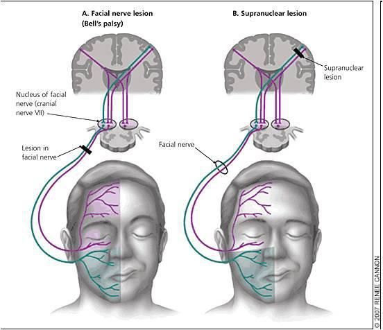 Facial Nerve Palsy A Lower Motor Neuron Type B Upper Motor