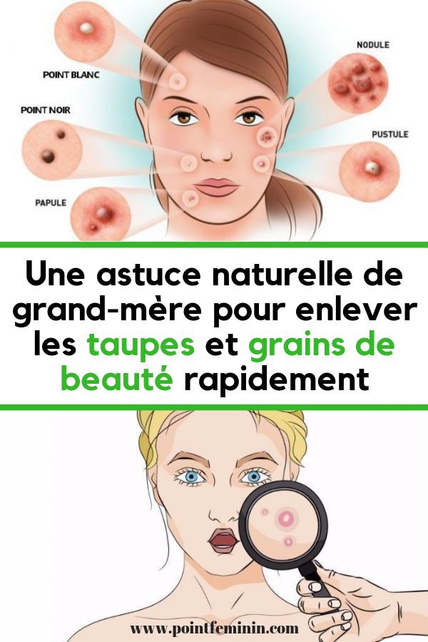 Une Astuce Naturelle De Grand Mère Pour Enlever Les Taupes Et Grains De Beauté Rapidement Good To Know Healthy Women Movie Posters