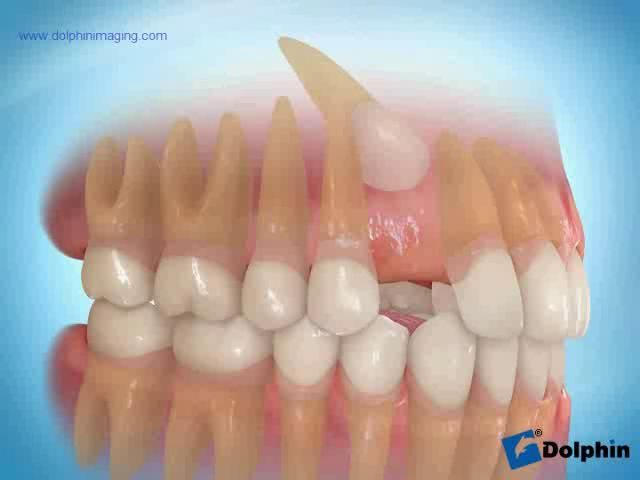 Impacted cuspid palatal treated exposing a tooth that isnt mozeypictures Gallery
