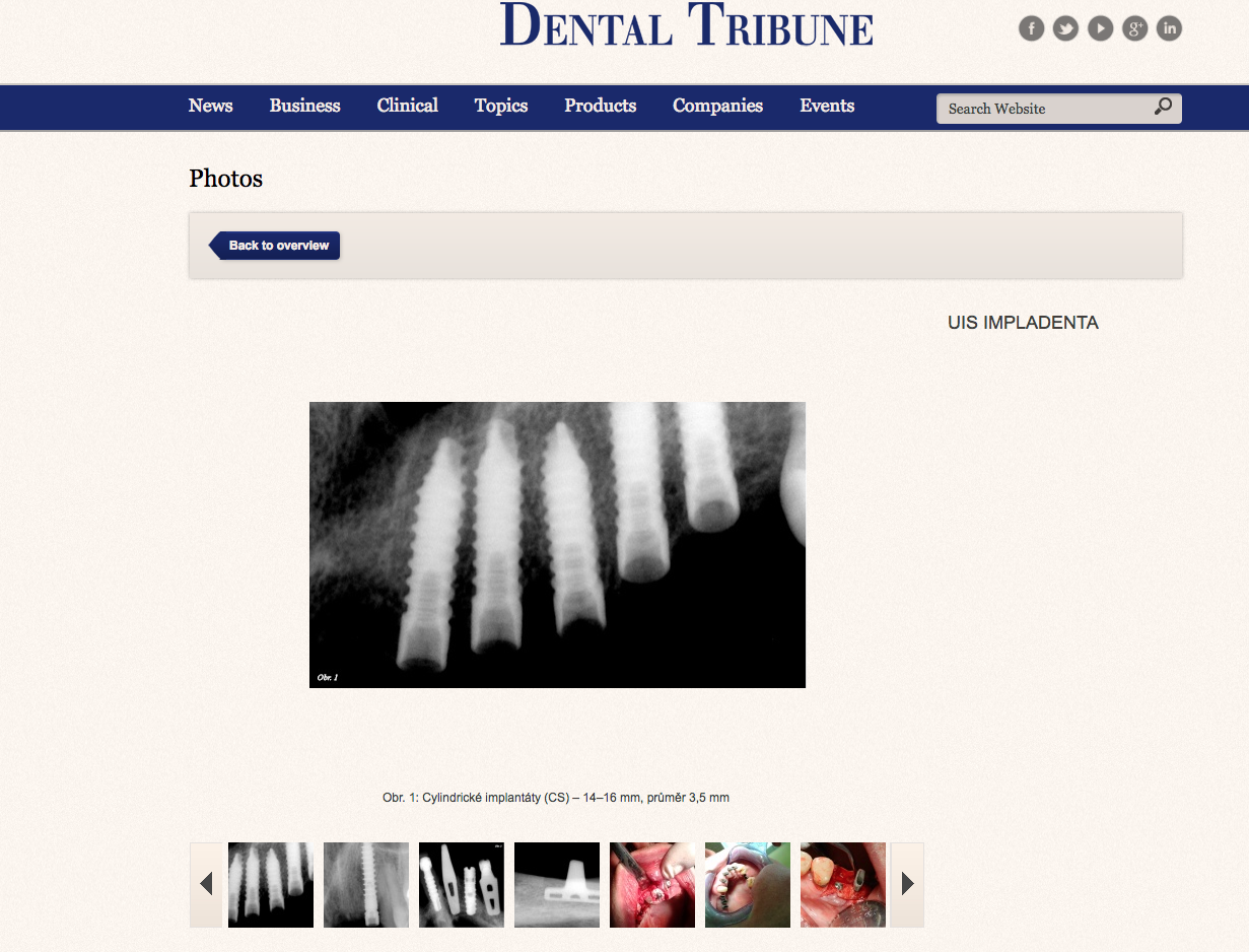 IMPLADENTA - universal implant system (UIS), view ONLINE | gallery Dental-Tribune | patients cases | One & two pieces implants | made in Czech Republic | 2017 | Screw implants & blade implants | Tradition over 30 years