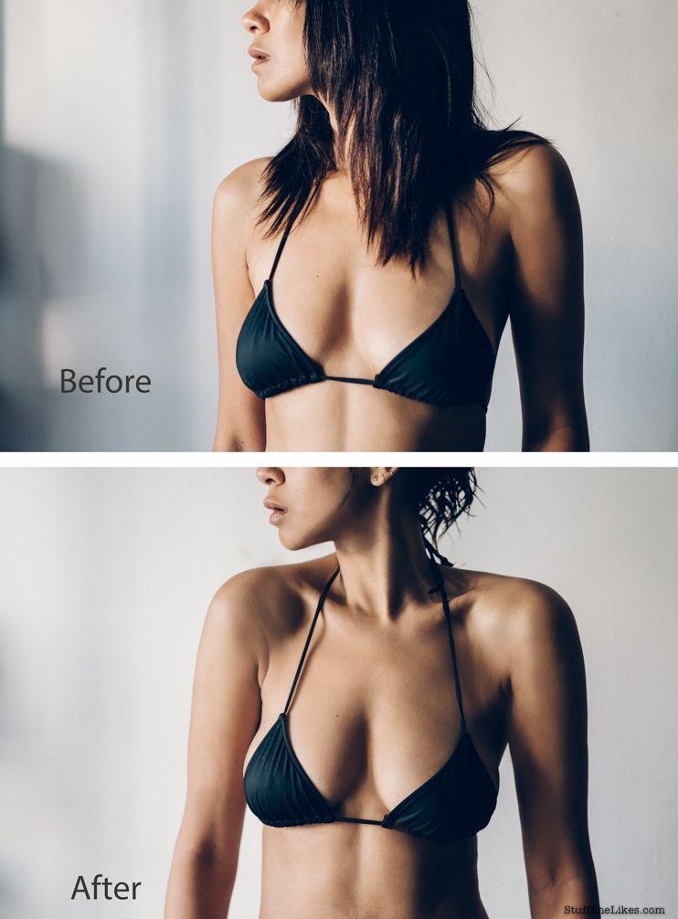 Pin On Breast Augmentation-1599