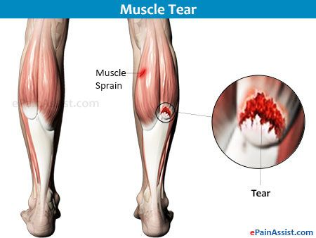 what causes muscle leg pain
