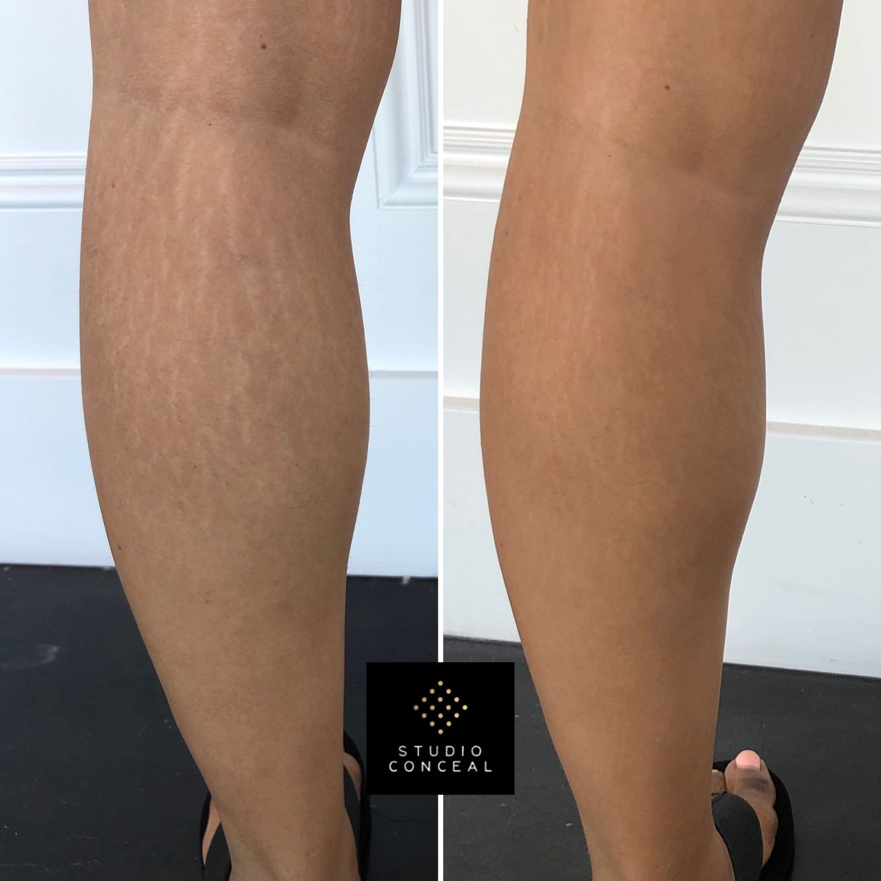 Pin on How to Camouflage Stretch Marks