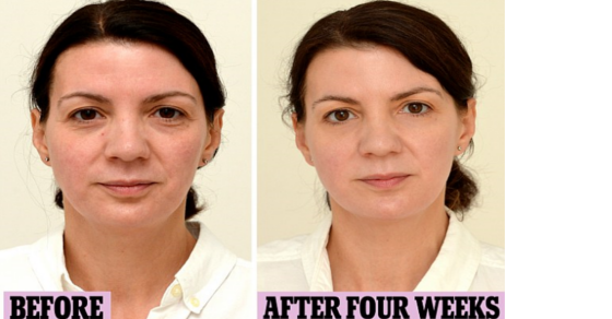 A gallon of water a day. Woman increases water intake--Look at the difference in her face! I'm starting week three and have noticed definite improvements in my skin and the way I feel physically.