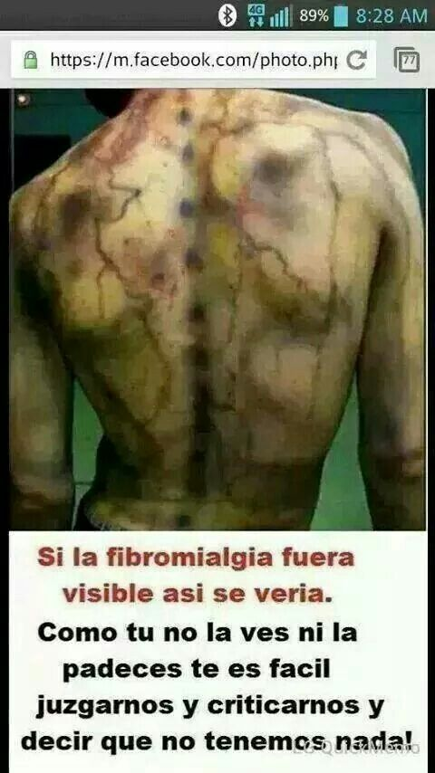 La para bueno fibromialgia es reiki el