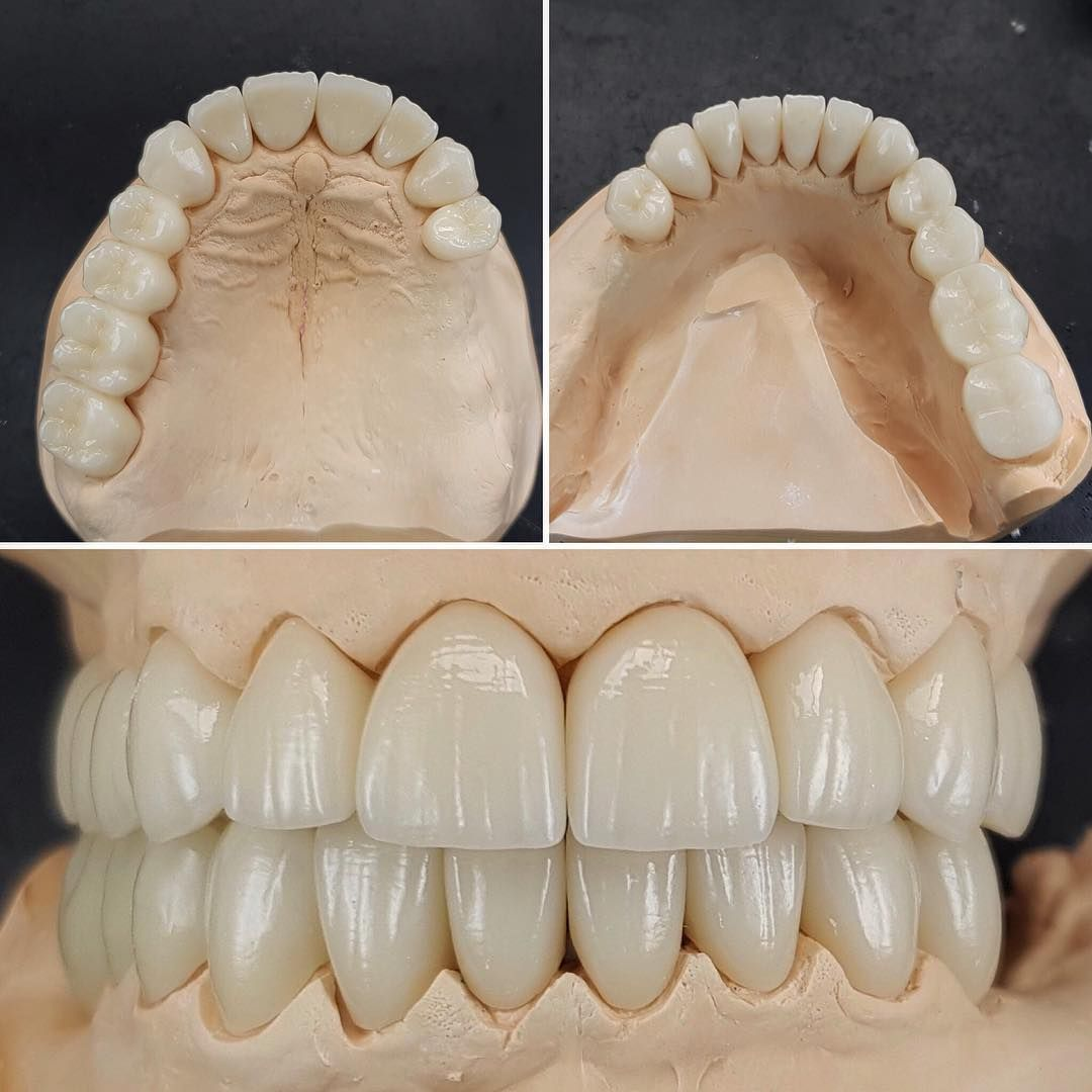 New Case Done In Zircon With A Full Layering Of Creation Ceramic Posteriors Of Second And Third Quadrant Are Sti Odontologia Protese Dentaria Dentes Perfeitos