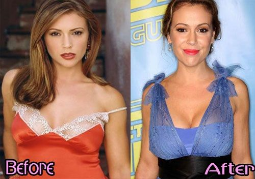 E Breast Implants Before And After Alyssa Milano Breast I...