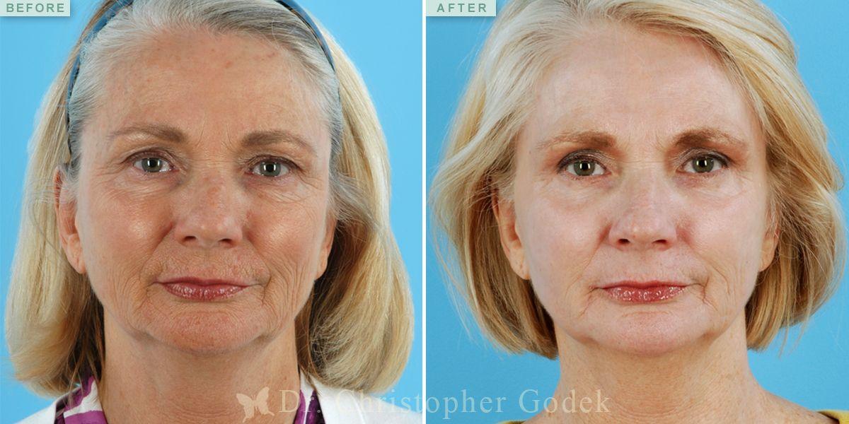 Laser resurfacing before and after Laser resurfacing