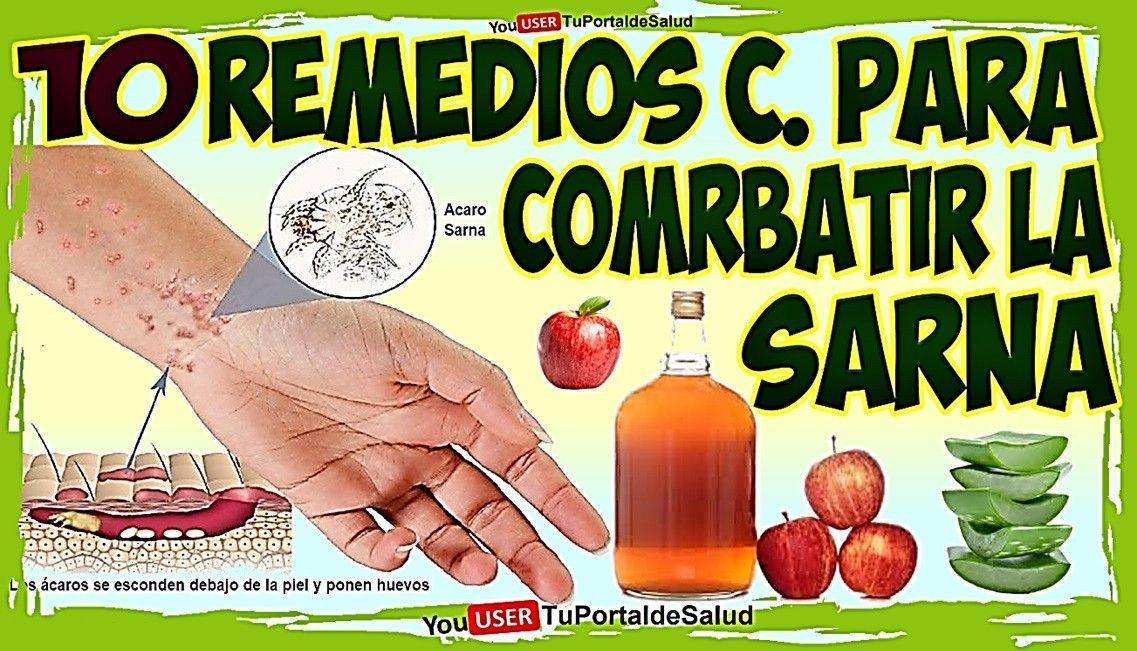 Productos naturales para curar la sarna