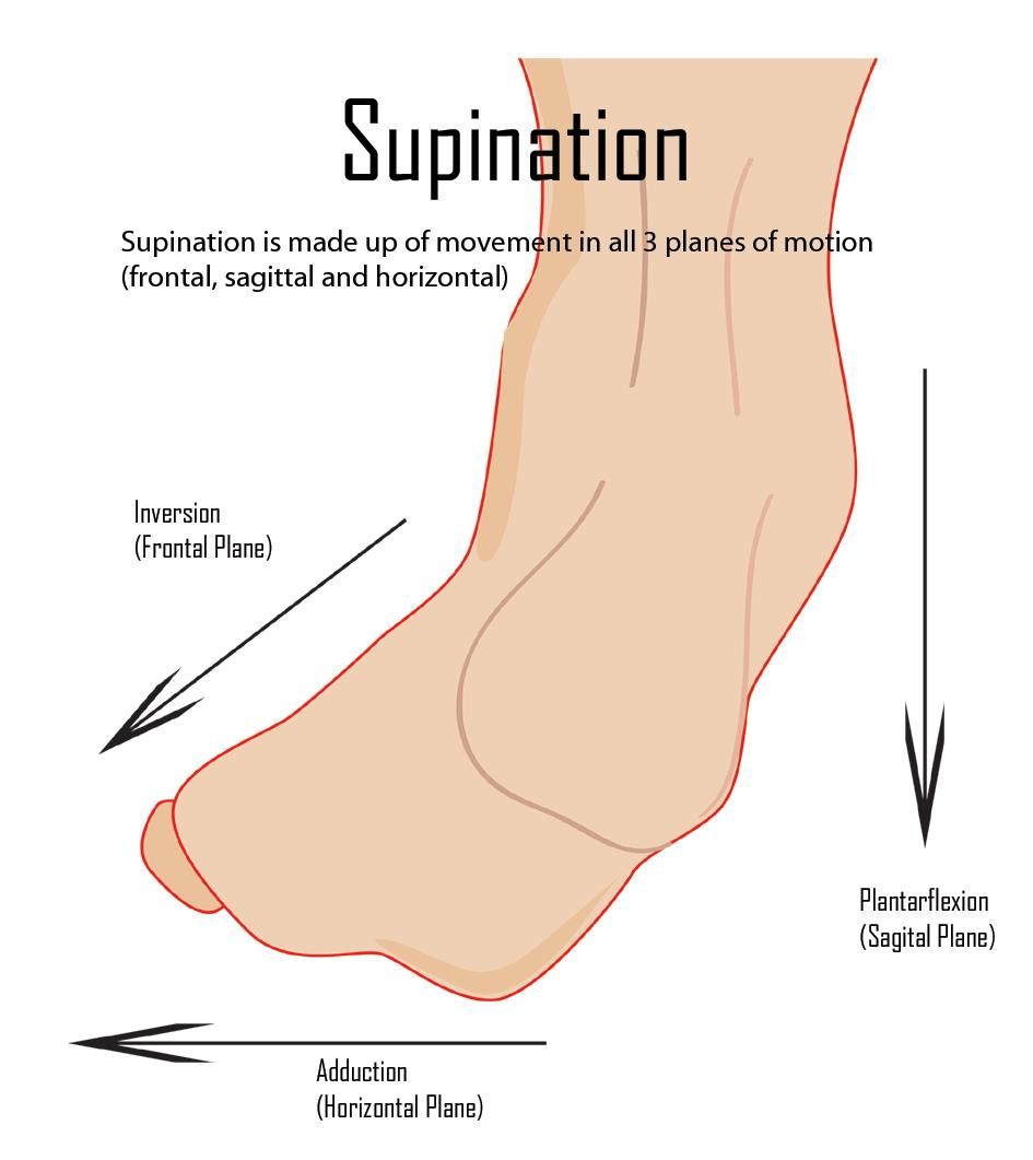 Supinsation is made up of movement in all 3 planes of motion ...