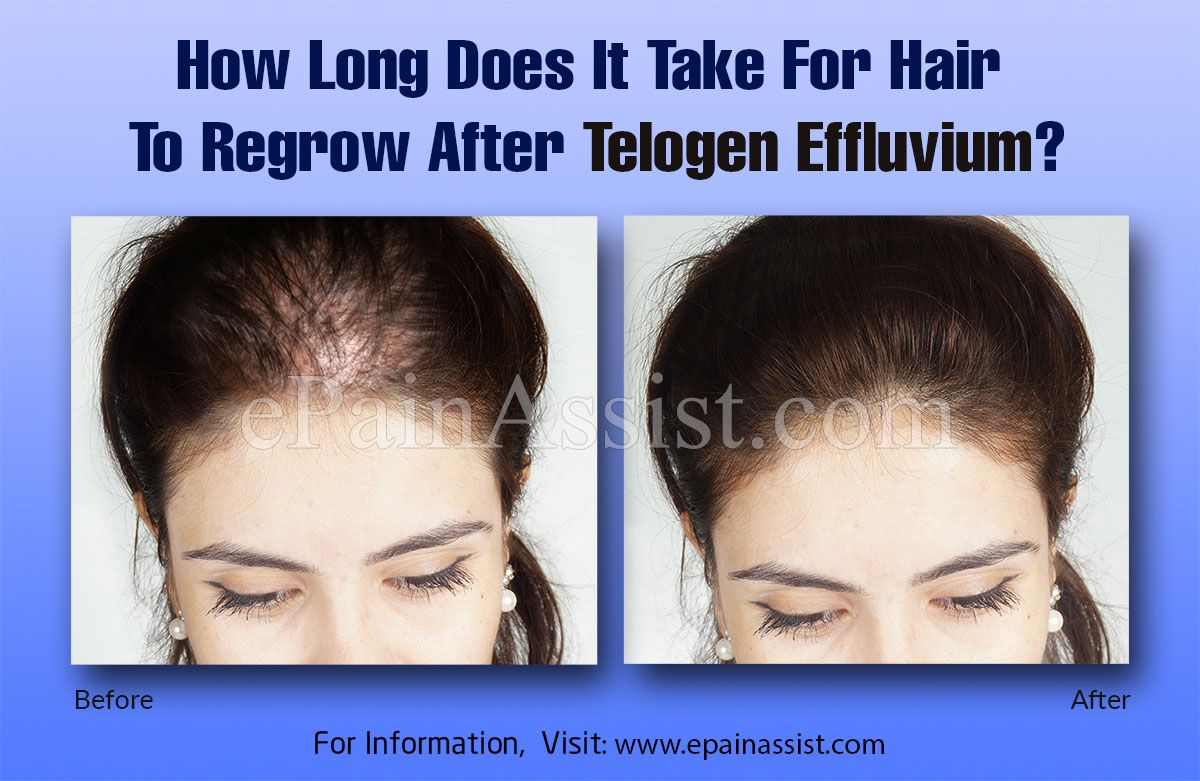 How long does it take for hair to grow back after telogen