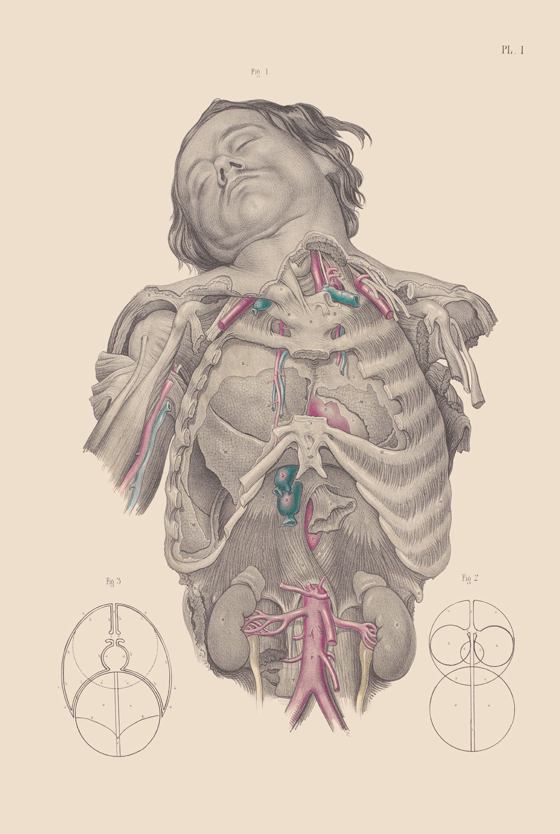 Dissection of the thorax, showing the relative position of the lungs ...