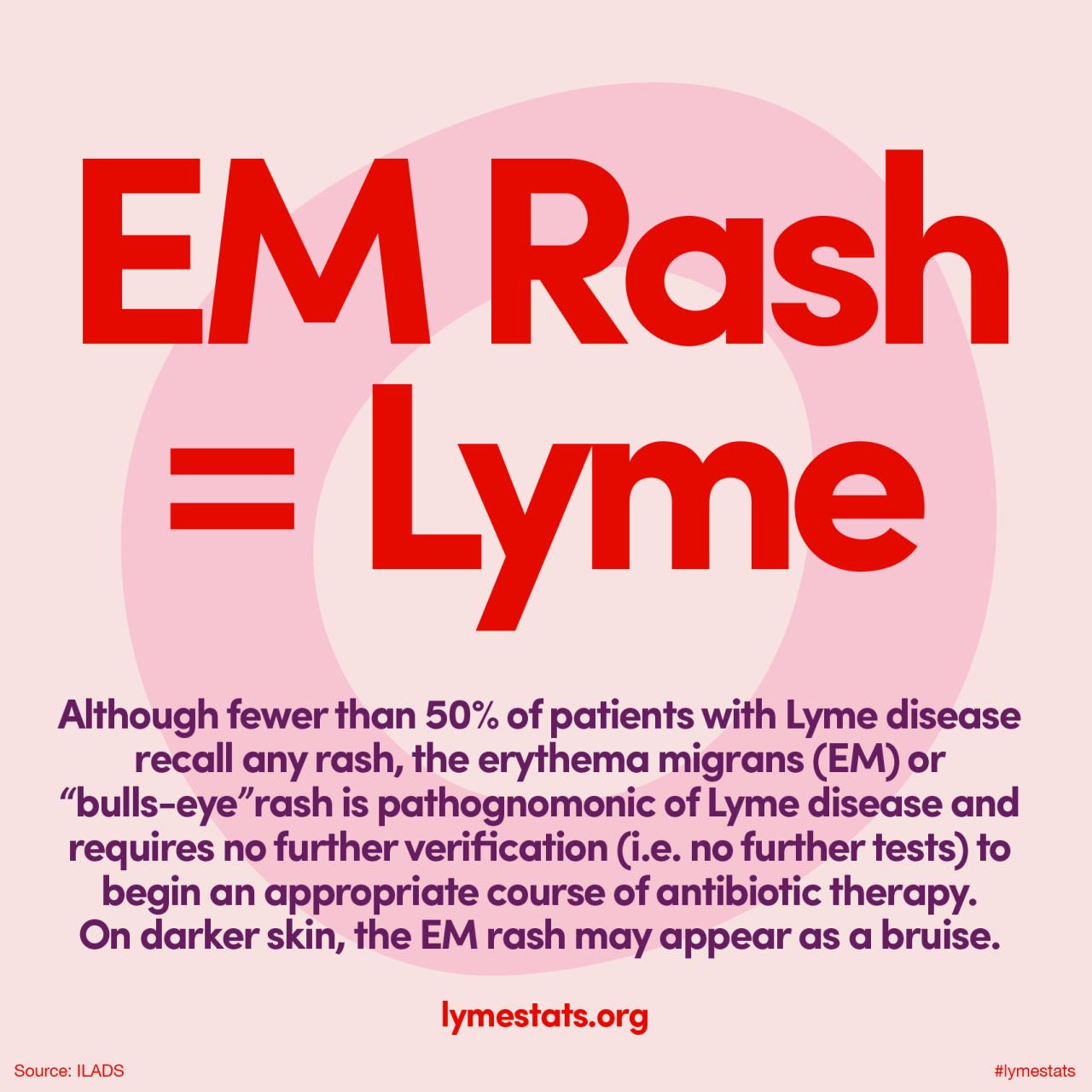 Although Fewer Than 50 Of Lyme Patients See A Rash The Erythema Migrans Em Or Bull S Eye Rash I Lyme Disease Symptoms Lyme Disease Awareness Lyme Disease