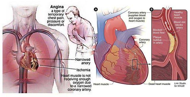 36+ Ciri ciri terkena penyakit jantung trends