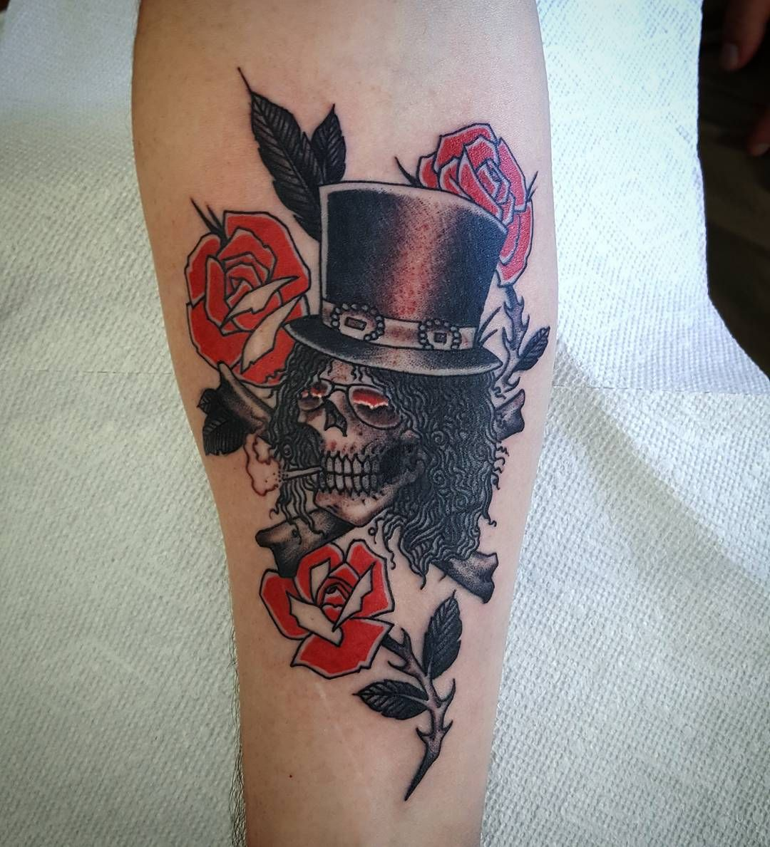 Tattoo Removal Reddit Vancouver