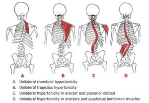 scoliosis  scoliosis exercises scoliosis physical therapy