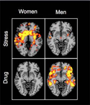 Addicts' Cravings Have Different Roots in Men and Women