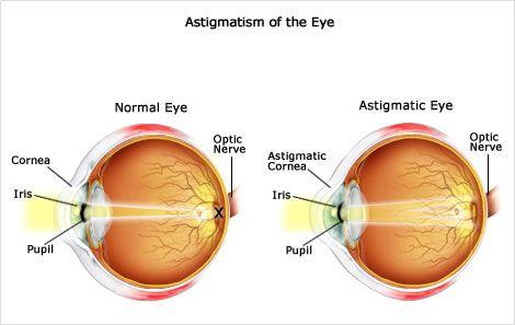Ametropia Hyperopia Myopia Astigmatism Presbyopia Rayur