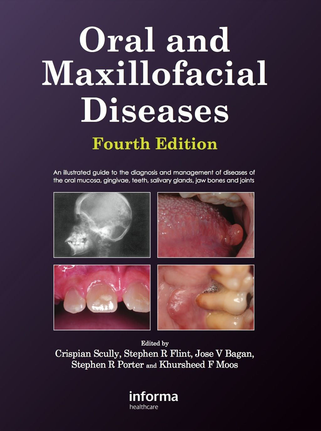 Management Of Oral And Maxillofacial Infection