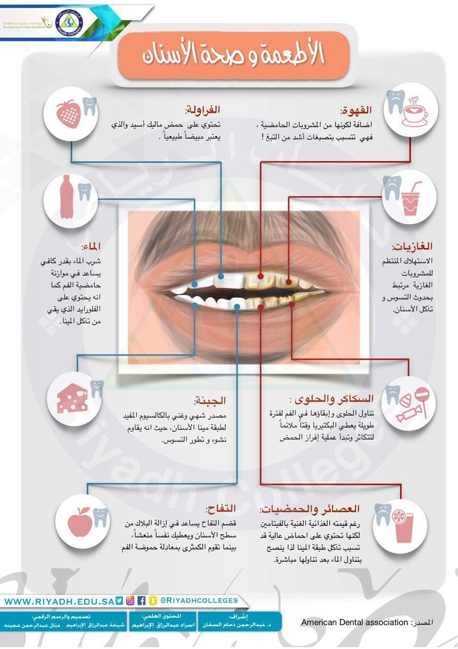 الأطعمة وصحة الأسنان Dental Art Dentistry Dental