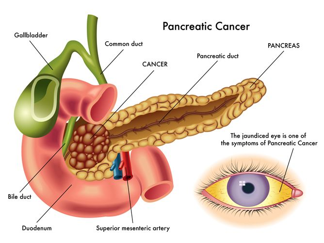 causes and symptoms of pancreatic cancer - easygoodhealth, Human Body