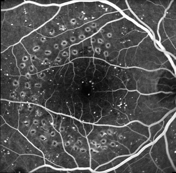 """Angio RD dopo laser. La terapia è rappresentata dalla fotocoagulazione Argon-laser delle aree ischemiche.  l """"trattamento focale"""" (griglia maculare) è praticato a livello della regione centrale della retina macula ed ha l'obiettivo di ridurre l'entità dell'edema maculare ripristinando cosi un'acuità visiva il più soddisfacente possibile"""